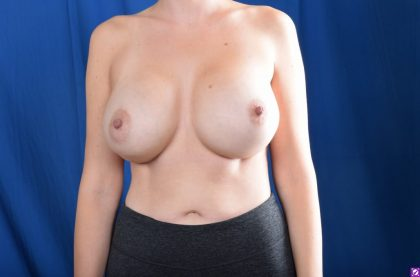 Breast Augmentation Before & After Patient #4730