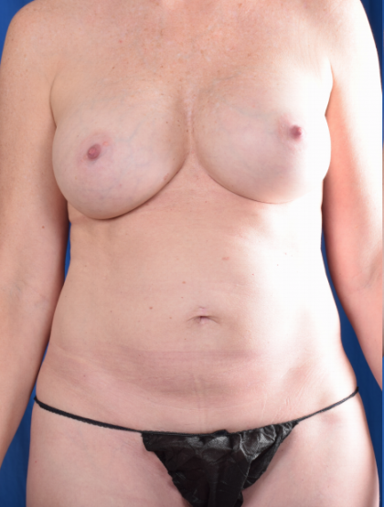 Tummy Tuck Before & After Patient #4878