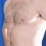 Gynecomastia Before & After Patient #4885
