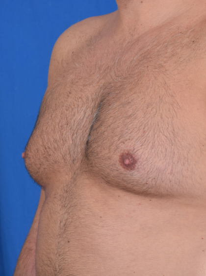 Gynecomastia Before & After Patient #4895