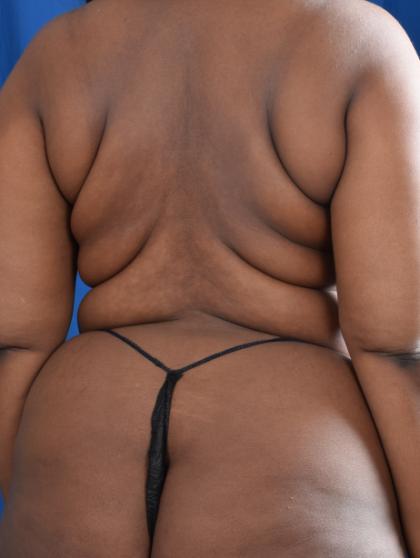 VASER Hi Def Liposuction Before & After Patient #4902