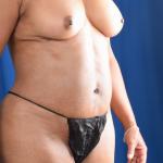 VASER Hi Def Liposuction Before & After Patient #4905