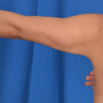 Arms Liposuction Before & After Patient #4910