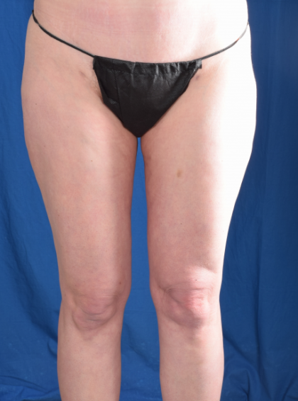 Legs Liposuction Before & After Patient #4917
