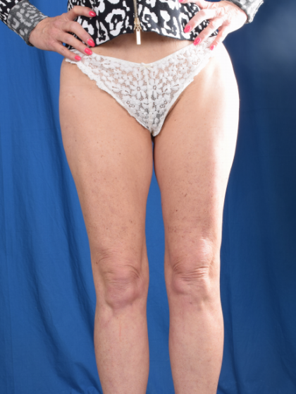 Legs Liposuction Before & After Patient #4922