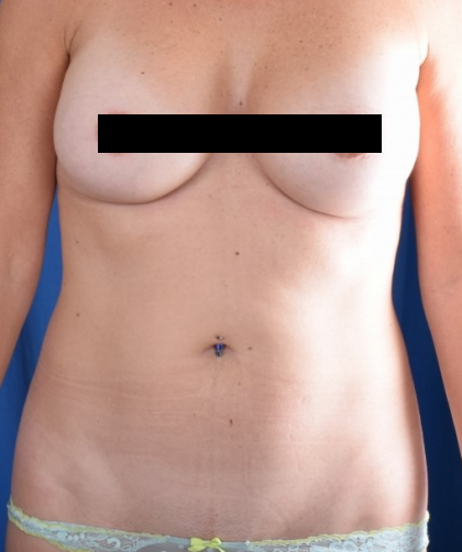VASER Hi Def Liposuction Before & After Patient #4932