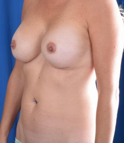 VASER Hi Def Liposuction Before & After Patient #4932