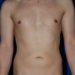 VASER Hi Def Liposuction Before & After Patient #4939