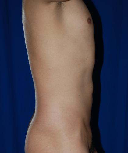 VASER Hi Def Liposuction Before & After Patient #4939