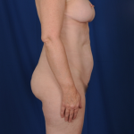 Standard Liposuction Before & After Patient #4948