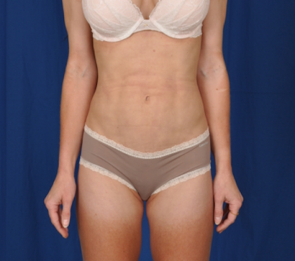 Standard Liposuction Before & After Patient #4955