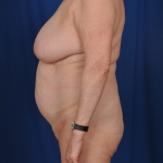 Standard Liposuction Before & After Patient #4962