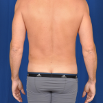 VASER Hi Def Liposuction Before & After Patient #4976
