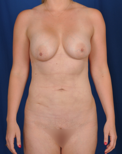 Standard Liposuction Before & After Patient #4985