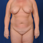 Standard Liposuction Before & After Patient #4992