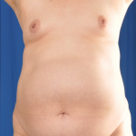 Standard Liposuction Before & After Patient #4999