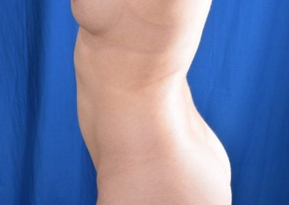 VASER Hi Def Liposuction Before & After Patient #5006