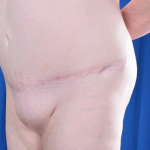 Standard Liposuction Before & After Patient #5015