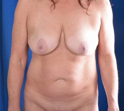 Tummy Tuck Before & After Patient #5022
