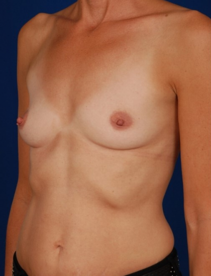 Breast Augmentation Before & After Patient #5029