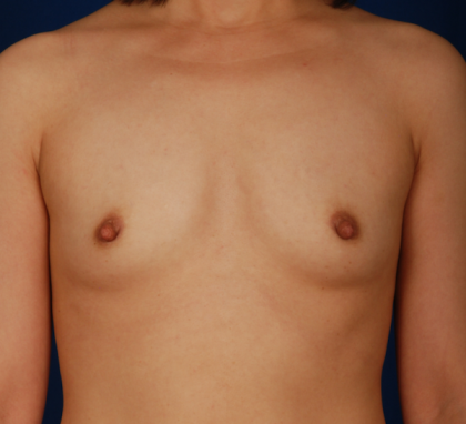 Breast Fat Transfer Before & After Patient #5032