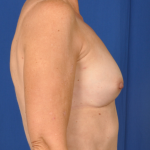 Fat Transfer Before & After Patient #5032