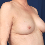 Fat Transfer Before & After Patient #5041