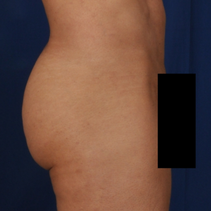 Fat Transfer Before & After Patient #5044