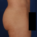Fat Transfer Before & After Patient #5049