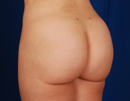Fat Transfer Before & After Patient #5055