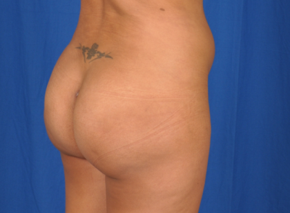 Fat Transfer Before & After Patient #5066