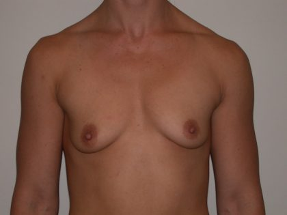 Breast Augmentation Before & After Patient #5083