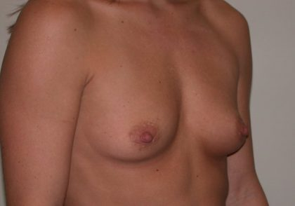 Breast Augmentation Before & After Patient #5093