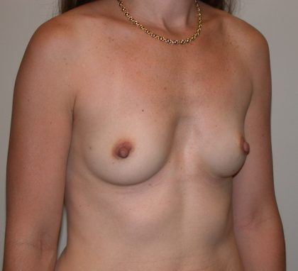Breast Augmentation Before & After Patient #5088