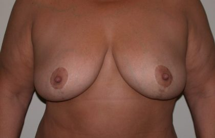 Breast Lift Before & After Patient #5106