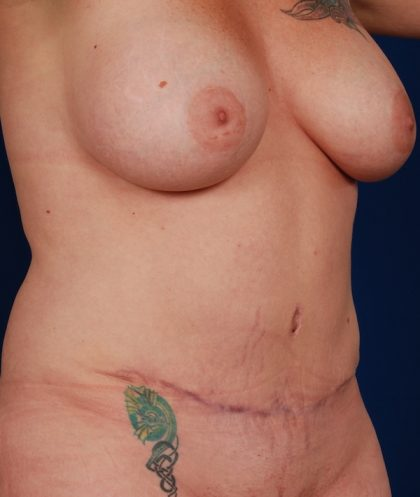 Tummy Tuck Before & After Patient #5123