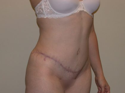 Tummy Tuck Before & After Patient #5159