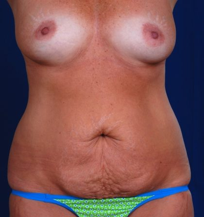 Tummy Tuck Before & After Patient #5122