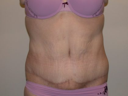 Tummy Tuck Before & After Patient #5132