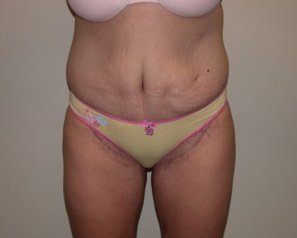 Tummy Tuck Before & After Patient #5133