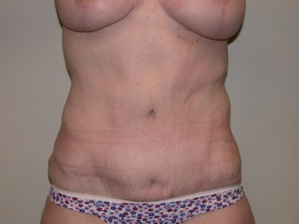 Tummy Tuck Before & After Patient #5138