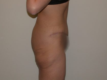 Tummy Tuck Before & After Patient #5139