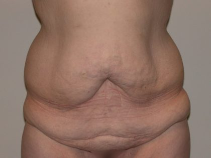 Tummy Tuck Before & After Patient #5151