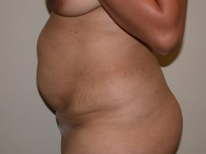 Tummy Tuck Before & After Patient #5158