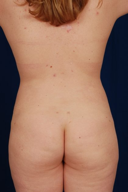 VASER Hi Def Liposuction Before & After Patient #5203