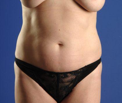 VASER Hi Def Liposuction Before & After Patient #5224