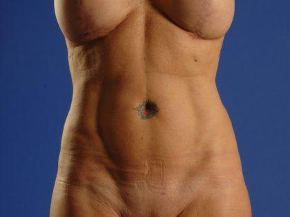 VASER Hi Def Liposuction Before & After Patient #5223