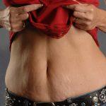 VASER Hi Def Liposuction Before & After Patient #5175