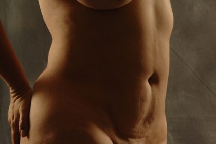 VASER Hi Def Liposuction Before & After Patient #5184