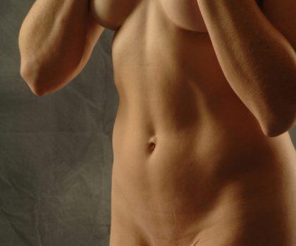 VASER Hi Def Liposuction Before & After Patient #5185